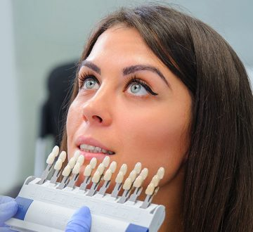 Dental Veneers Quickly hide defects with Your Teeth